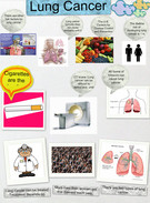 LUNG CANCER SCIENCE BLOCK:1's thumbnail