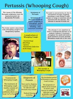 [2015] Suny Salioski: Pertussis (Whooping Cough)