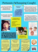 [2015] Suny Salioski: Pertussis (Whooping Cough)'s thumbnail