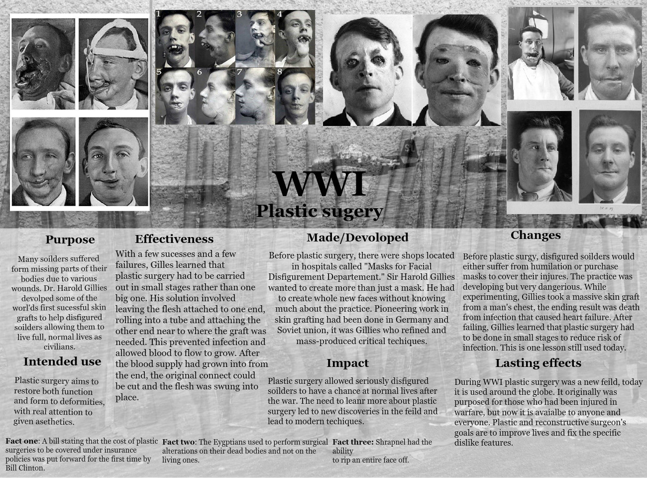 Plastic Surgery during WWI